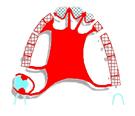 Stelligraphe, logiciel de conception prothétique